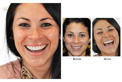 Chipped Teeth Treatment with veneers