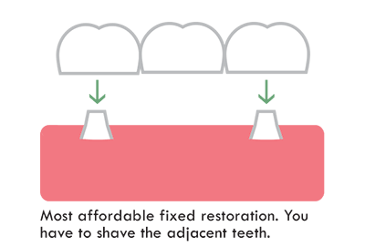 dental bridge is affordable