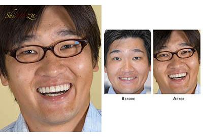 Flared Teeth Fix