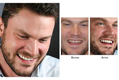 gap teeth fix