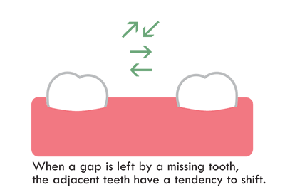 missing tooth casuse other teeth to shift