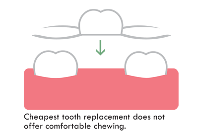 partial denture is the cheapest option to replace a tooth