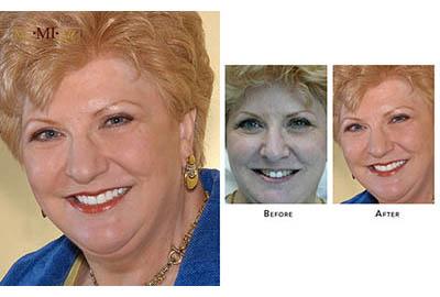 Uneven Teeth Color fix