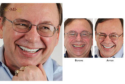 Worn teeth repair