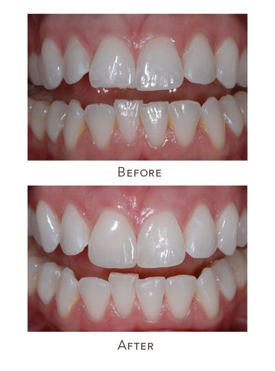 dental bonding before after