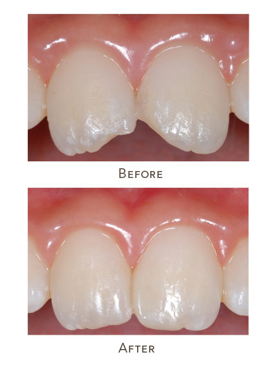 dental bonding before after children