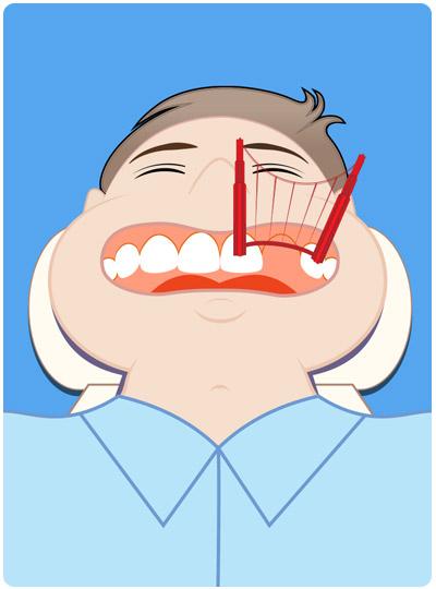 dental bridge any good