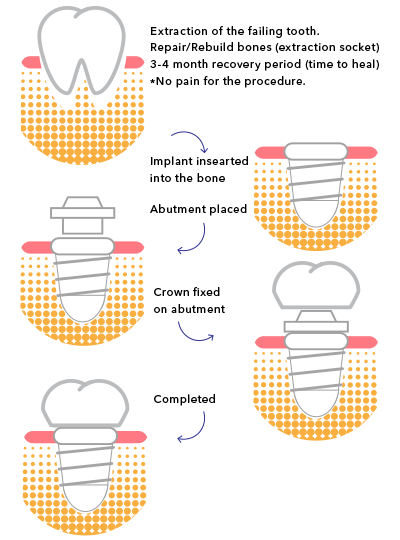 dental implants treatment steps