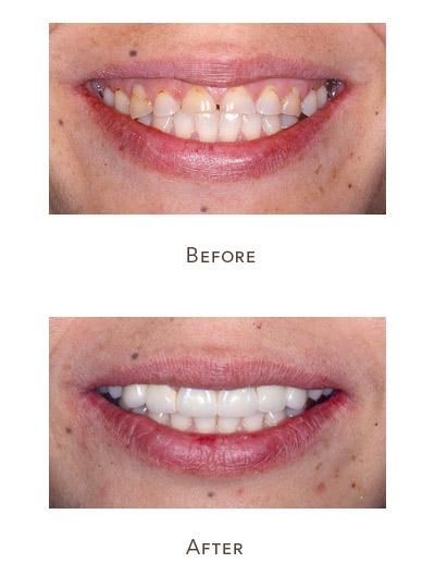 lengthen short teeth