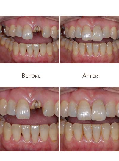 front upper tooth replacement before after