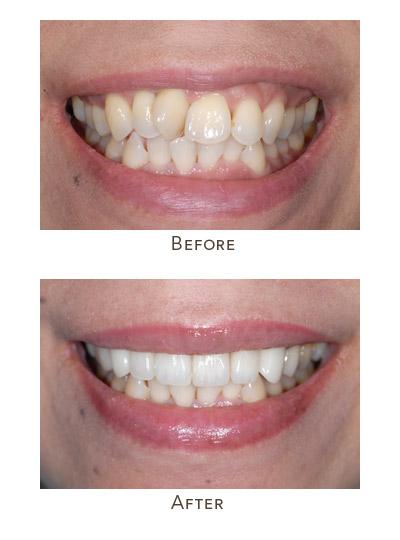 fix crooked teeth fast