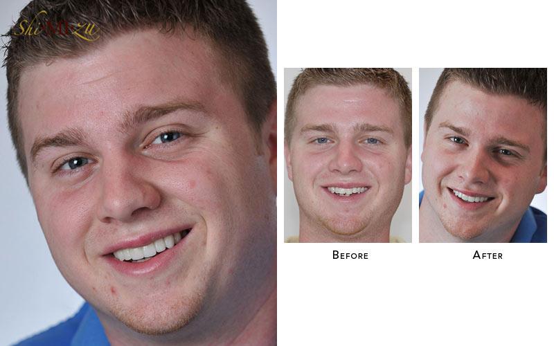 fix overlapped teeth fast