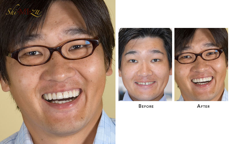 flared teeth fix without braces