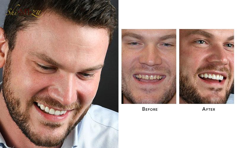 fix gap teeth