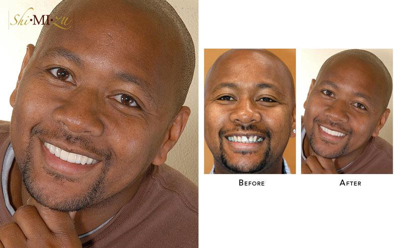 missing teeth fix