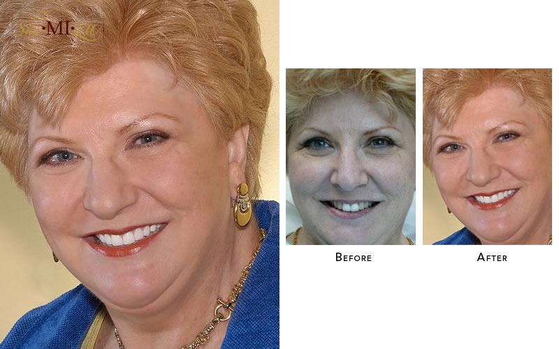 fix uneven teeth color