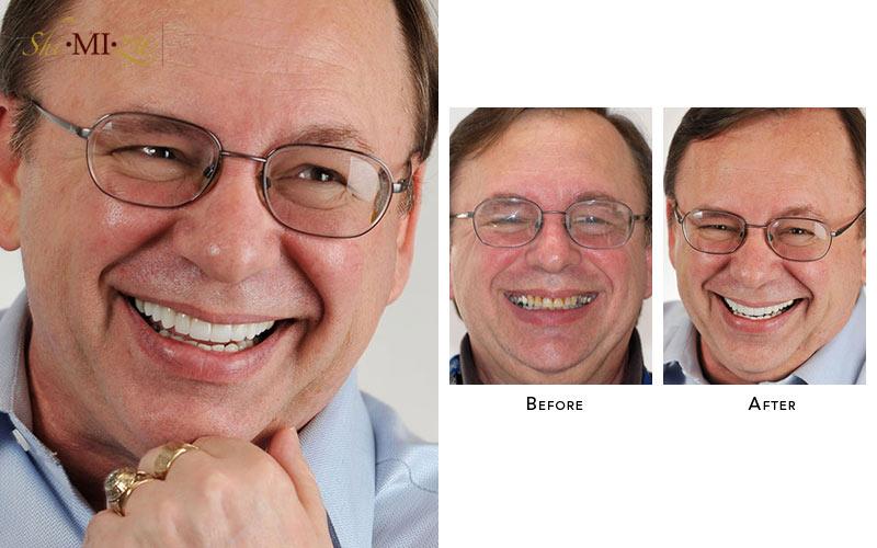worn out teeth fix