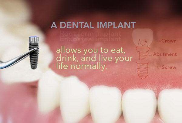 dental implant is good for you
