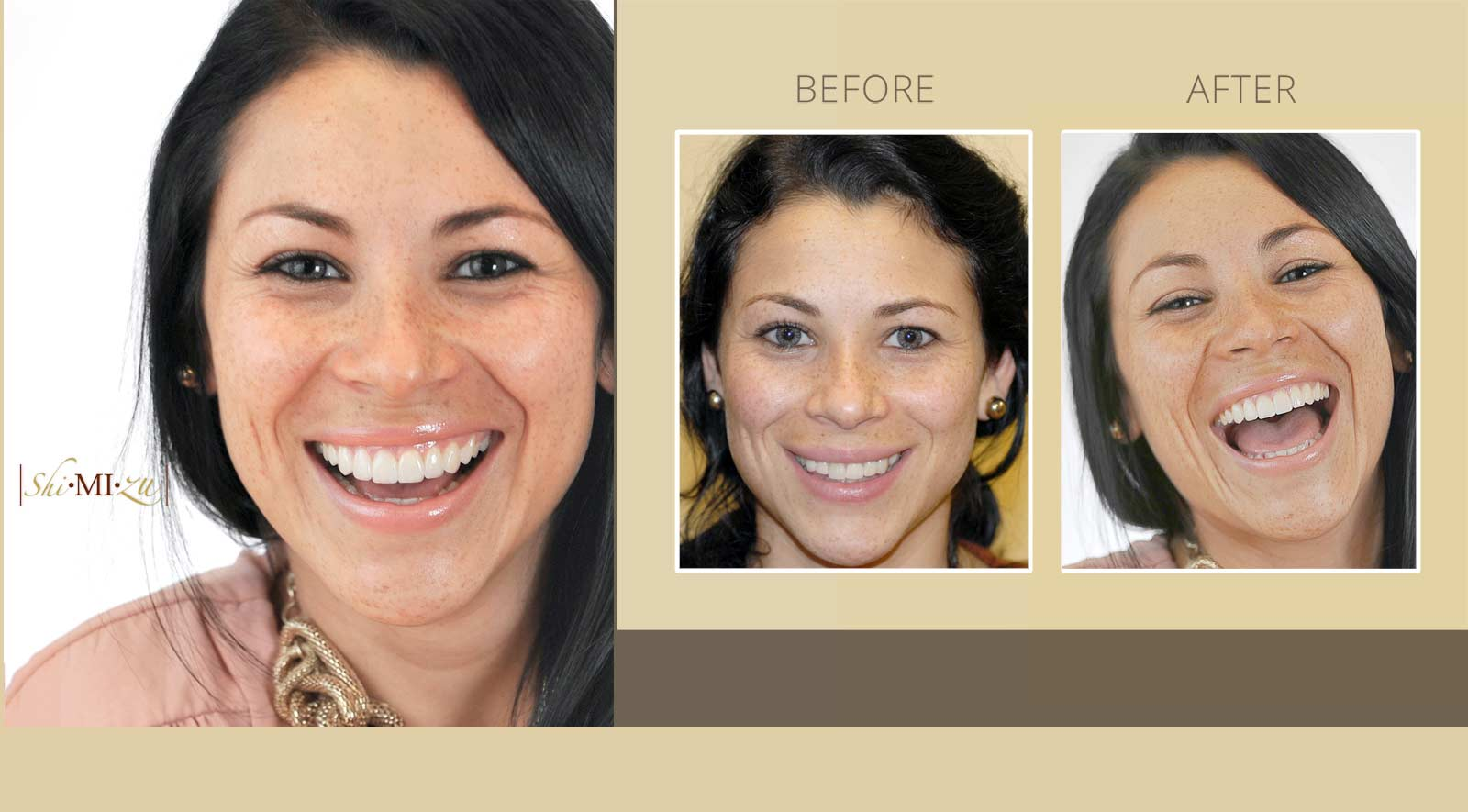 smile makeover with dental veneers