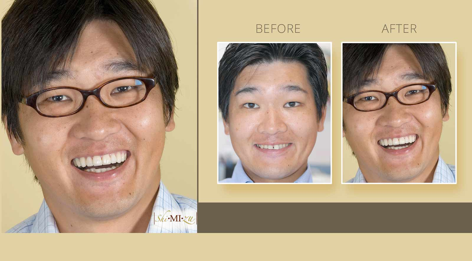 award winning cosmetic dentistry results before after