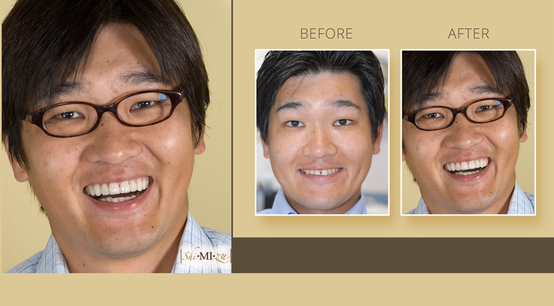 Flared teeth with gap fix before and after