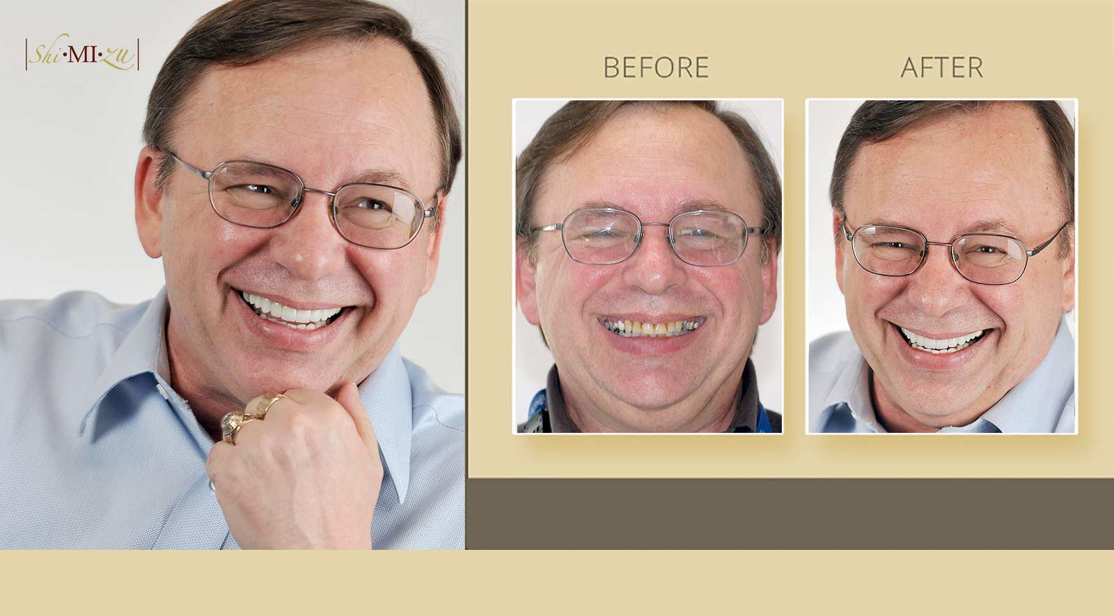 smile makeover discoloration of teeth