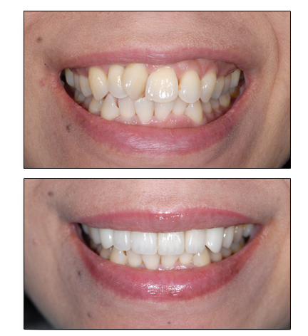 fix crooked teeth without braces