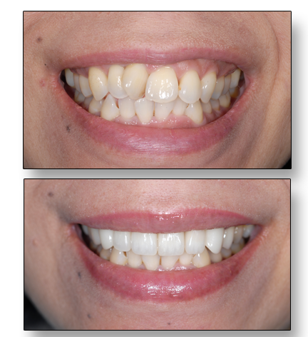 fix crooked teeth without braces: instant orthodontics