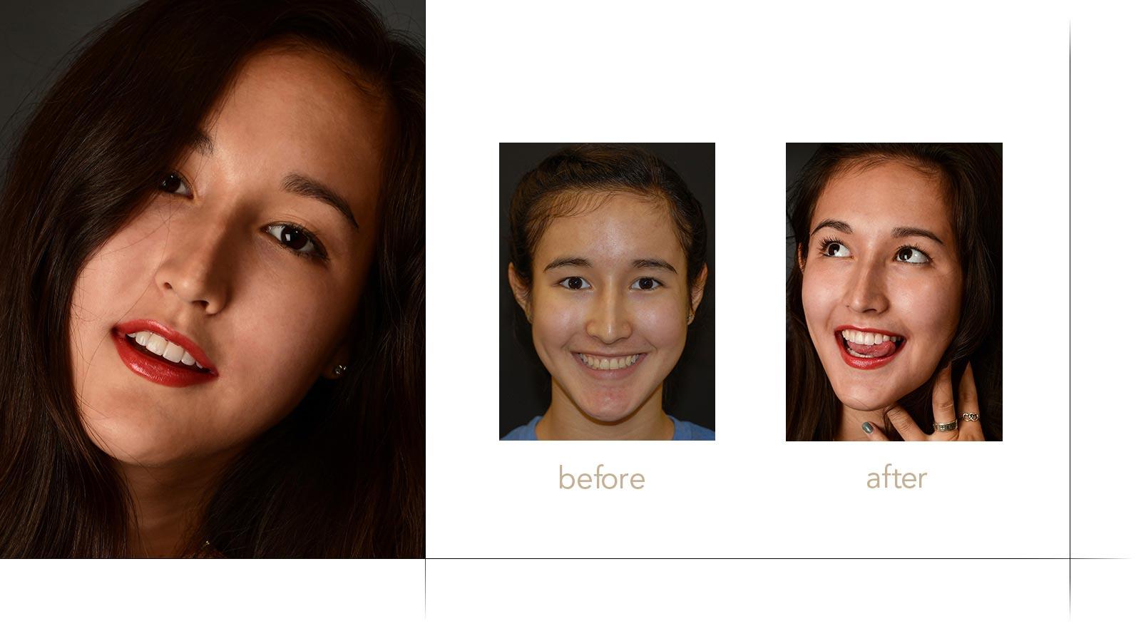 peg teeth fixed with dental veneers