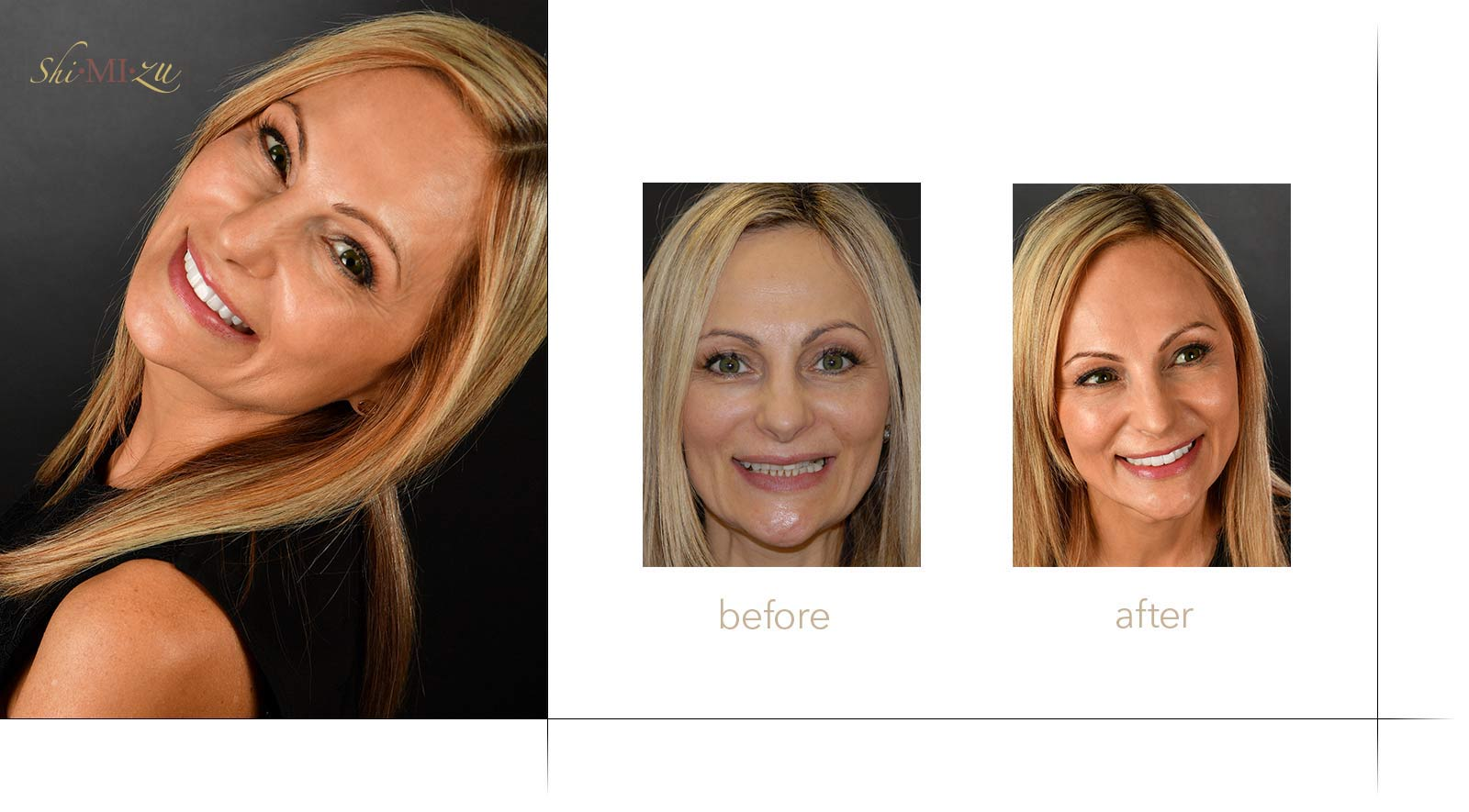 full mouth restoration with veneers and implants